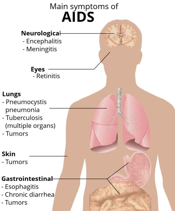 What are the symptoms of aids?