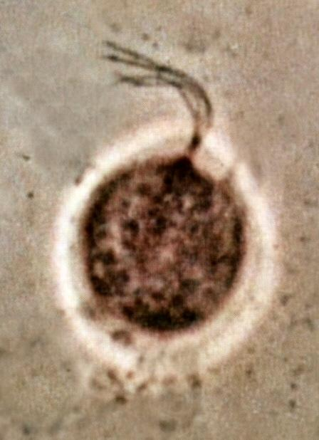 What does trichomoniasis look like?