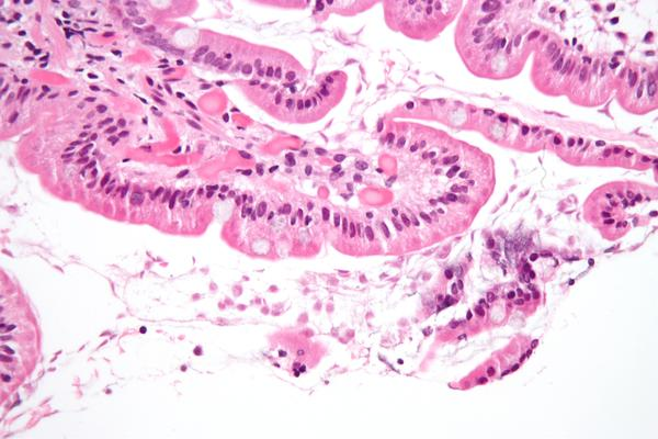 Is 2 months of colitis normal after 4 months of giardiasis, what else could it have caused?
