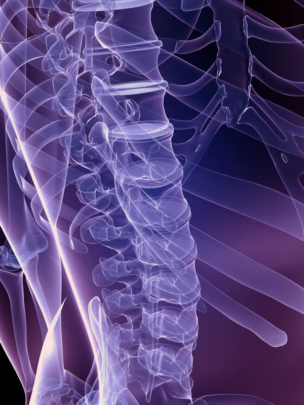 Hearing cracks in my spine on a daily basis is a symptoms of what? Please note that I have a recent bulging disc l5-s1 and ddd?