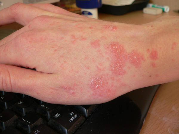 What will get rid of hives?