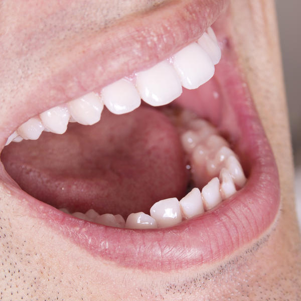 Is having a toothache a symptom of mouth being small?