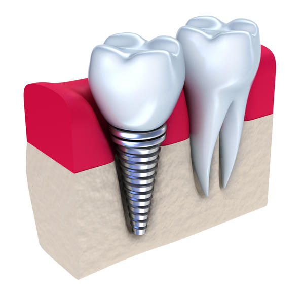 Are dental implants and bone grafts safe?