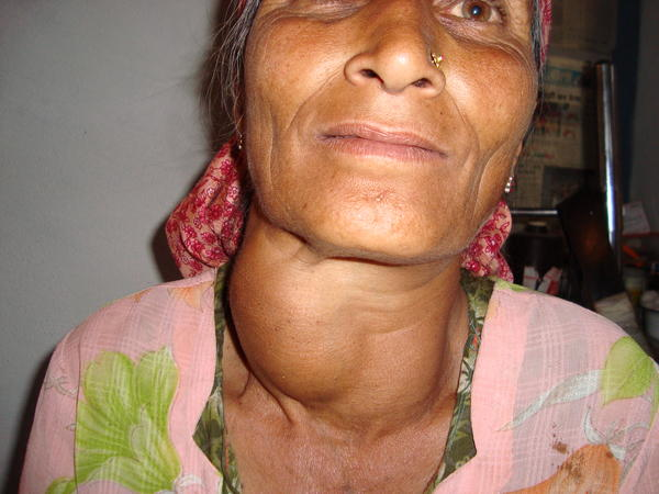 Wht is cause of increase in colloid goiter nodule frm 29 * 20 to 35 * 22 n isthmus frm 15 to 42 mm? Treatment? Tsh T3 T4 normal