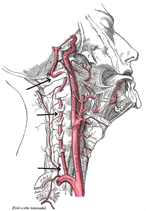 I have pain on the left side of neck were the carotid artery is. Pain sometimes goes to my ear and when I breath in? Pain comes and goen. What is it?
