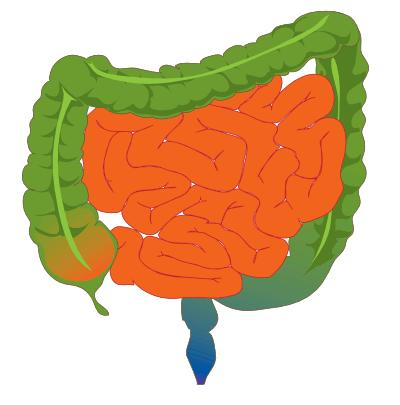 Can a stomach ulcer cause bowel problems? Constipation/loose stool/cramping/gurgling/bloating/pain in lower left abdomen?