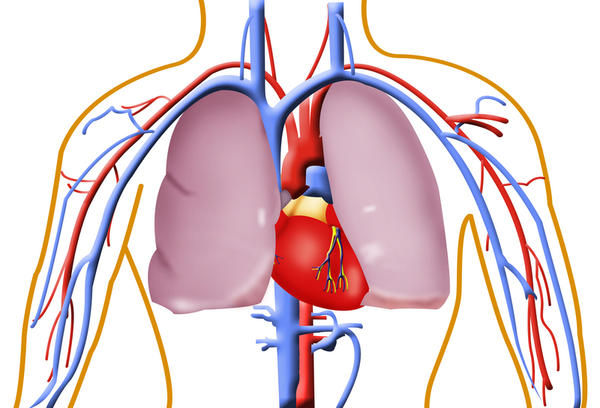 Would my husbands symptoms after a saddle embolism of pulmonary artery have been different if it were treated earlier?