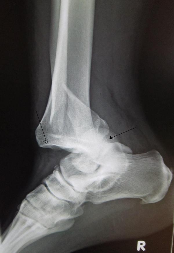 What thing reinforces the fibrous capsule to help prevent dislocation of the joint?
