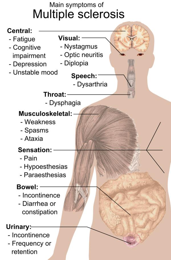 I am afraid of having multiple sclerosis. .....:(?