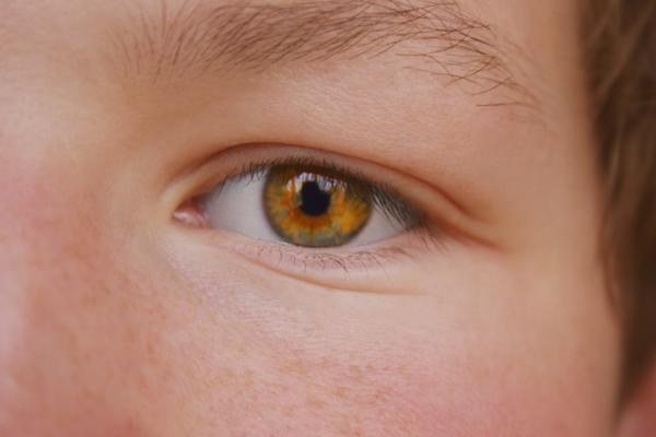 What is usual cause of conjunctivitis in schools?