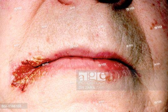I woke up Sunday with a purple spot on my bottom lip. It's been there many years but it's never blown up and not shrunk back down.?