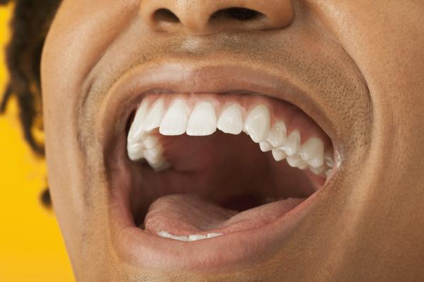 Can canker sores appear on gum near teeth?