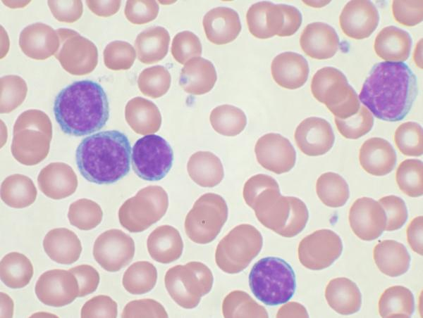 19 month old has 4 swelling lymph nodes in her neck red blood cells disorder neutrophil 18(24-62), lymphocytes 75(31-65)+ severe family history of cll?