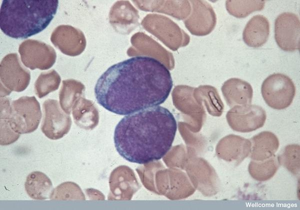 I have a normal WBC & RBC but i hav a high lymphocytes low neutrophils high platelate am i lead  to have a leukemia?