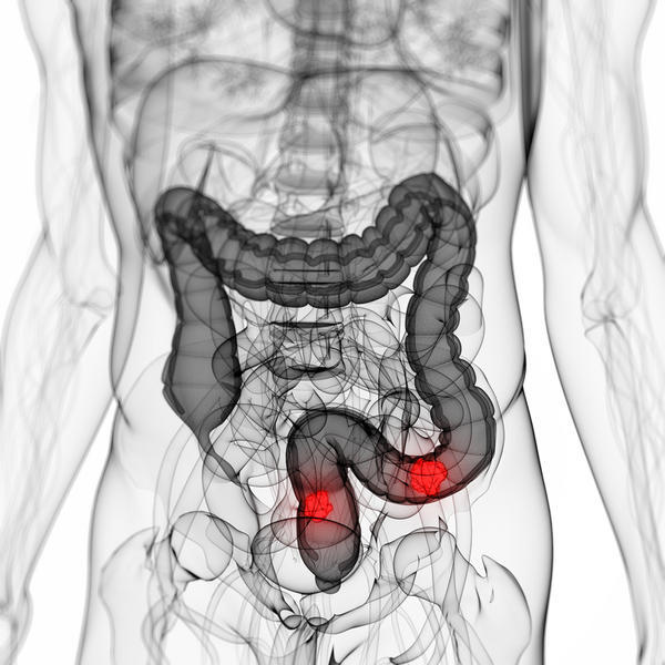 Severe llq pain CT skip lesions hyperenhancement/ wall thickening of ti + fat stranding rectum. Colonoscopy ok waiting biopsy. Crohn's? Gas +d 12+m