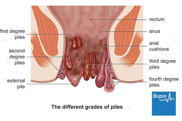 Are hemorrhoids commonly outside the body or internal?