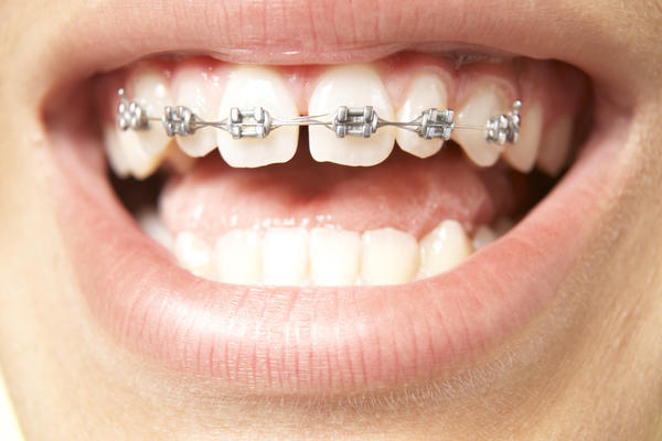 Discolored teeth after braces common?