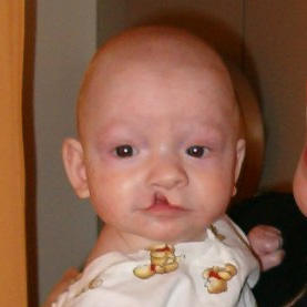 Are there any good ways of reducing scarring after a cleft lip surgery?