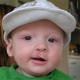 What are the treatments for correcting a cleft lip/palate in babies?