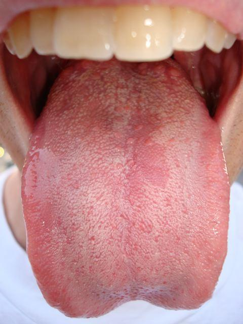 My tongue is scalloped and swollen (can't fully see the uvula); feels too big for the shape of my lower mouth; red dots on the tip and a pre-oral-thrush near back (or just white patches). Should I go see a doctor?