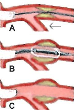What is the difference between balloon angioplasty and regular angioplasty?