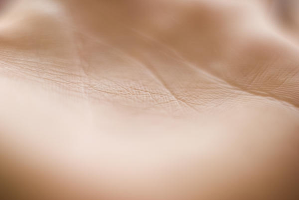Is a mole a sign of  skin cancer or it can be a sign of other types of cancer ?