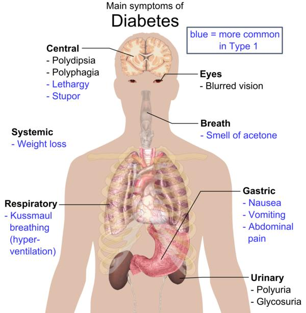 Possible complications of diabetes mellitus?