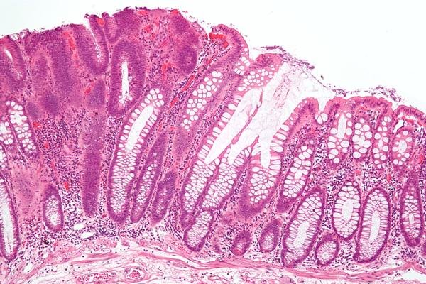 What is a adenomatous colon polyp.?