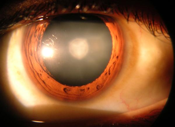What are the symptoms of cataracts and how are they progressing over time?