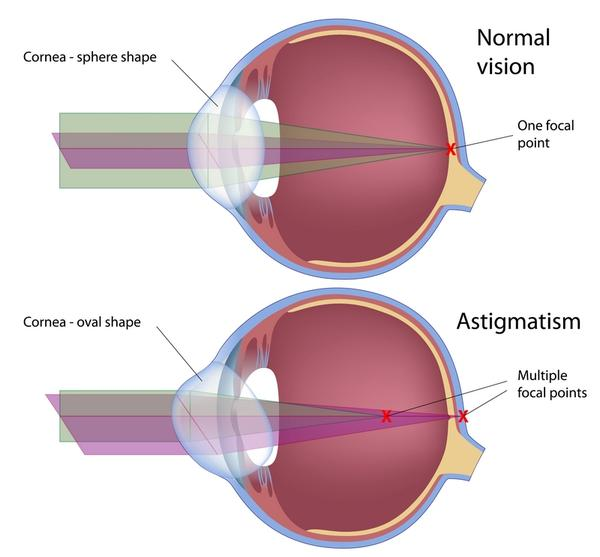 What body systems and organs are affected by astigmatism?