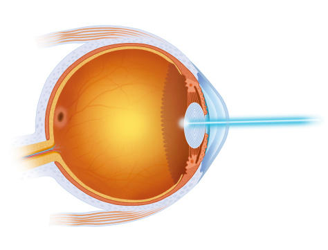 How does a Retinal specialist help with Macular degeneration?
