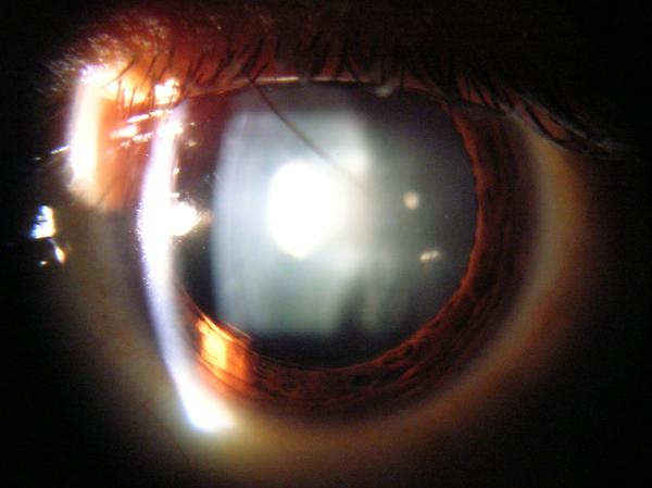 After an eight ball hyphema surgery and treatment, the left iris and pupil of the patient  has turned white with the vision not clear. What do we do?