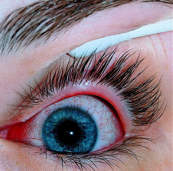 How long after using antibiotic eye drows for bacterial pink eye should you wait to wear make up?