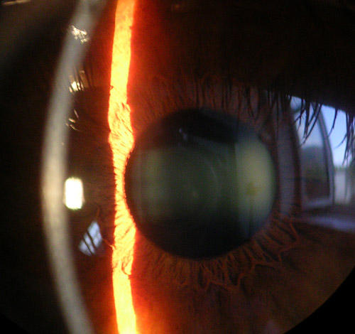Is having a white spot in the iris area a sign of corneal ulcer?