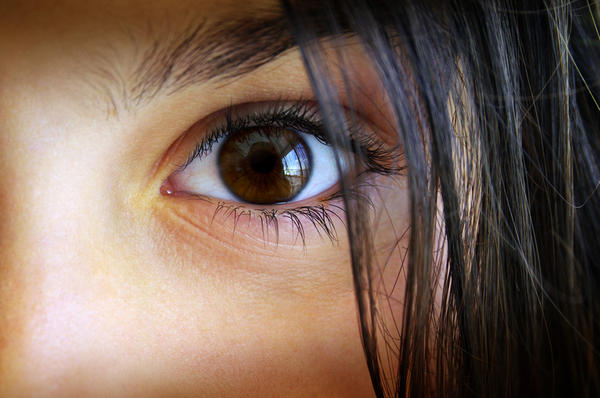 What are the causes of high eye pressure, besides glaucoma?