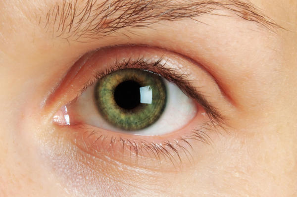 What causes scaring in the eye if you have macular degeneration?