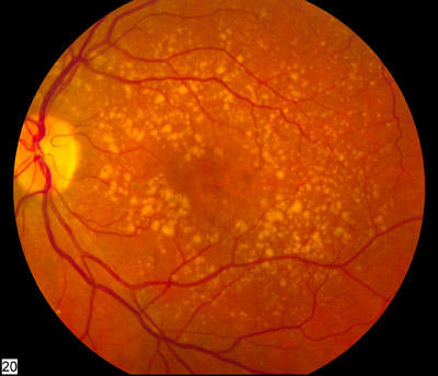 What are maculopathy and macular dystrophy?