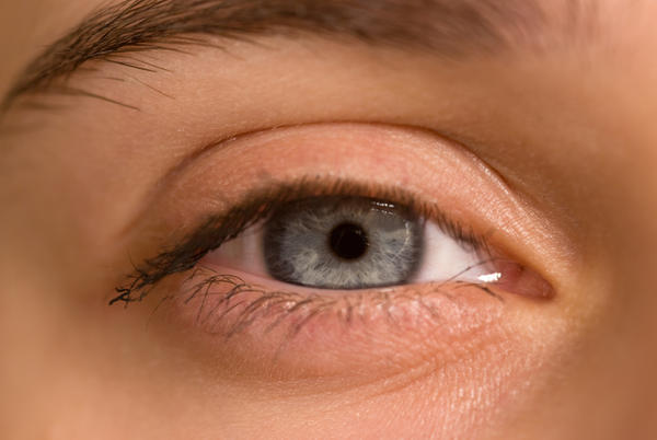 What is the cause of blisters on the waterline of the eye?