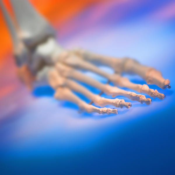 What to do if I have the sesamoid bone removed?
