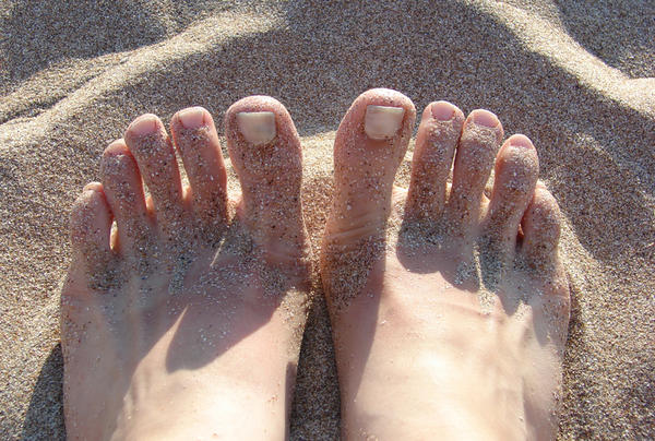 Can a sunburn to the legs cause the ankles & feet to swell?
