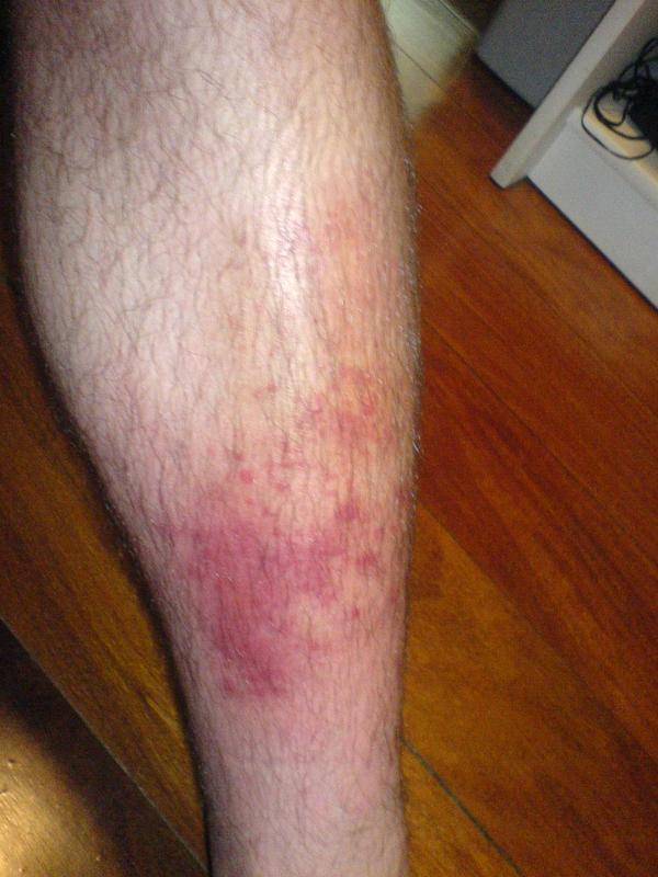 What could cause cellulitis to reoccur?
