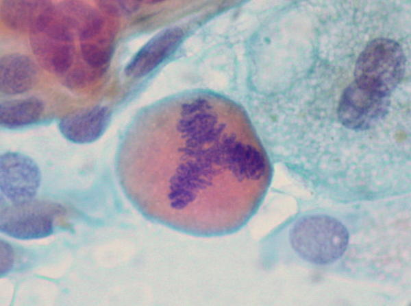 What cancer would cause myelofibrosis in a 57 year old woman?