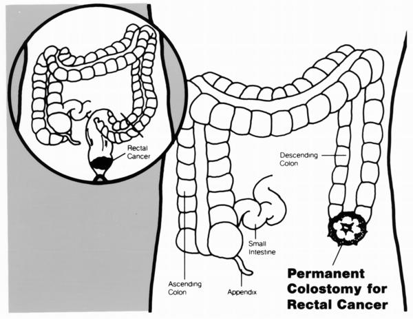 How should I change a colostomy bag?