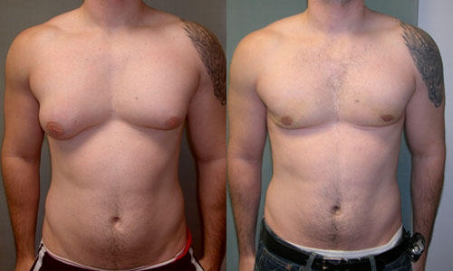 What is the best treatment for male breast enlargement?
