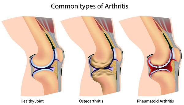 Have arthritis on my knees, how can I get some relief?