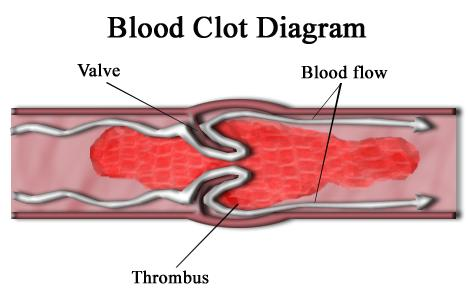 What can you do if you have a blood clot in your leg?
