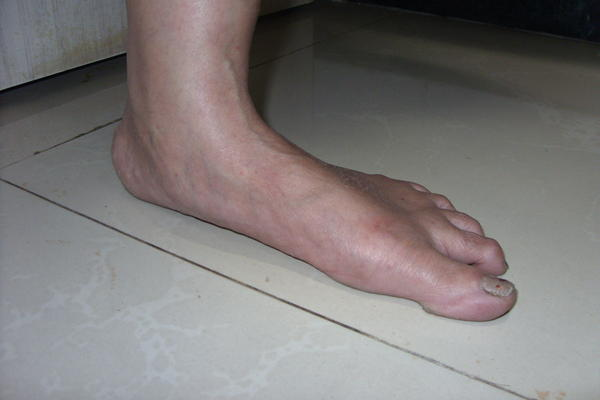 What is the cause of flat feet?