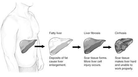 My liver is border line enlarged from fatty liver from obesity. Is this something that can be seen physically or am I imagining this?