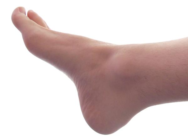 What does it mean when you have calcium build up in your feet?