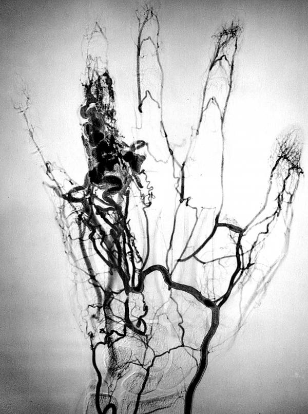 How do you tell what plaque type you have without an angiogram?